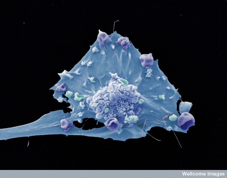 Breast cancer cell photos